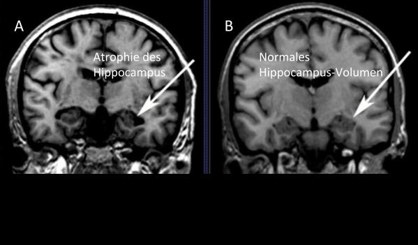 MRT Gehirn Ernährung